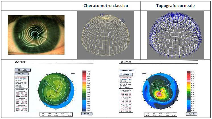 topografia-corneale-ottica-mazzone-trani